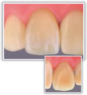 前歯|ジルコニアセラミック・クラウン(オールセラミック)