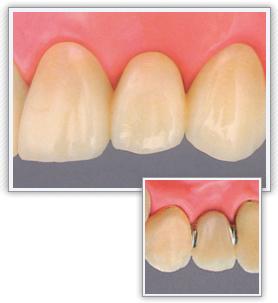 前歯|ジルコニアセラミック・ブリッジ(オールセラミック)