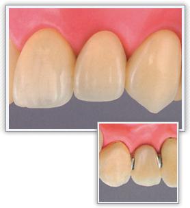 前歯|ハイブリッドセラミック・ブリッジ