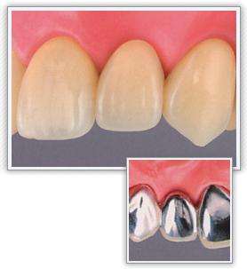 前歯|レジン前装・ブリッジ(保険適応)