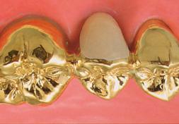 臼歯|ゴールド・ブリッジ