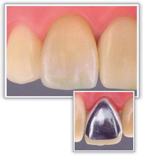 前歯 硬質レジン前装クラウン(保険適応)
