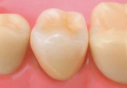 臼歯|セラミック・クラウン(金属裏装)