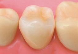 臼歯|ハイブリッドセラミック・クラウン(フルカバージャケット)