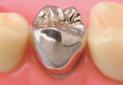 臼歯|銀のクラウン(保険適応)