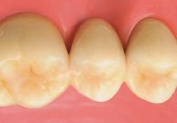 臼歯|ジルコニアセラミック・クラウン(オールセラミック)