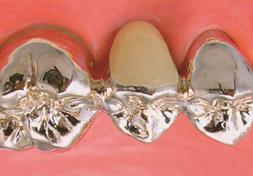 臼歯|銀のブリッジ(保険適応)